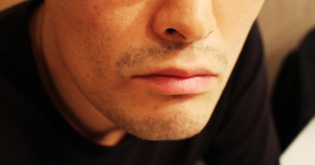 日焼け・色黒肌で医療レーザーのヒゲ脱毛を受ける男
