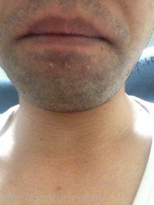 ヒゲ脱毛1回目の効果(脱毛直後、1日目、正面)