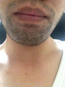 ヒゲ脱毛1回目の効果(脱毛直後、3日目、正面)