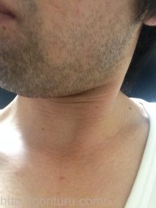 ヒゲ脱毛1回目の効果(脱毛直後、3日目、左ほほ・もみあげ)