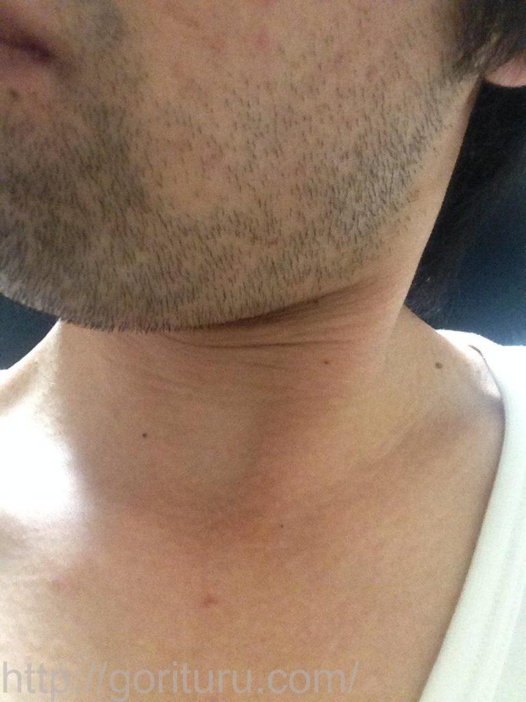1回目のヒゲ脱毛後3日目(左ほほ・もみあげ)