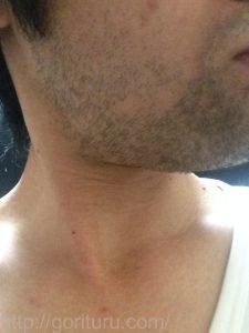 ヒゲ脱毛1回目の効果(脱毛直後、3日目、右ほほ・もみあげ)