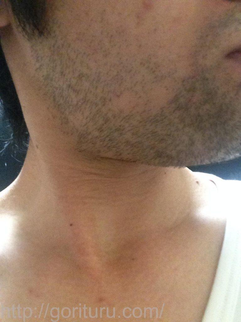 1回目のヒゲ脱毛後3日目(右ほほ・もみあげ)