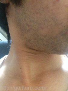 ヒゲ脱毛1回目の効果(脱毛直後、1日目、右ほほ・もみあげ)