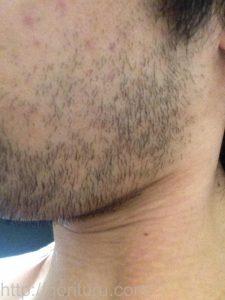 ヒゲ脱毛1回目の効果(脱毛直後、7日目、左ほほ・もみあげ)