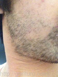 ヒゲ脱毛1回目の効果(脱毛直後、7日目、右ほほ・もみあげ)