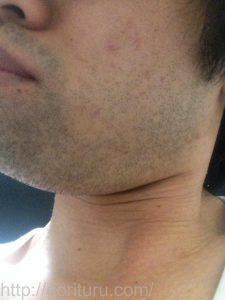 ヒゲ脱毛1回目の効果(脱毛直後、1日目、左ほほ・もみあげ)