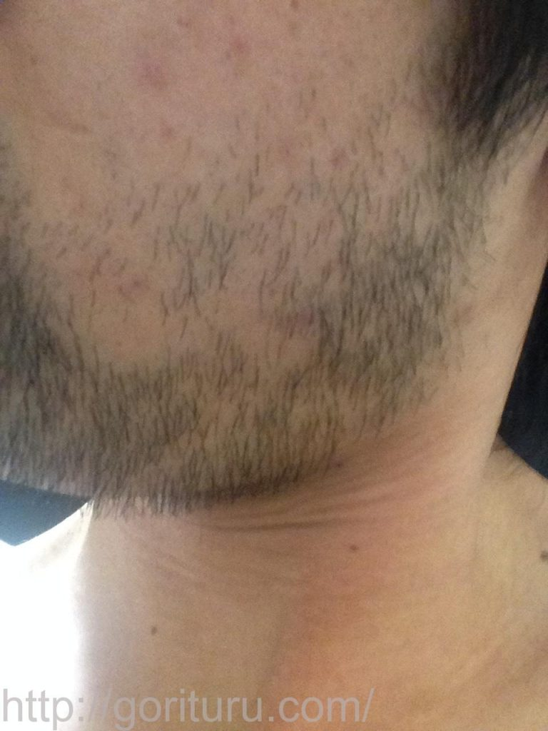 1回目のヒゲ脱毛後10日目(左ほほ・もみあげ)