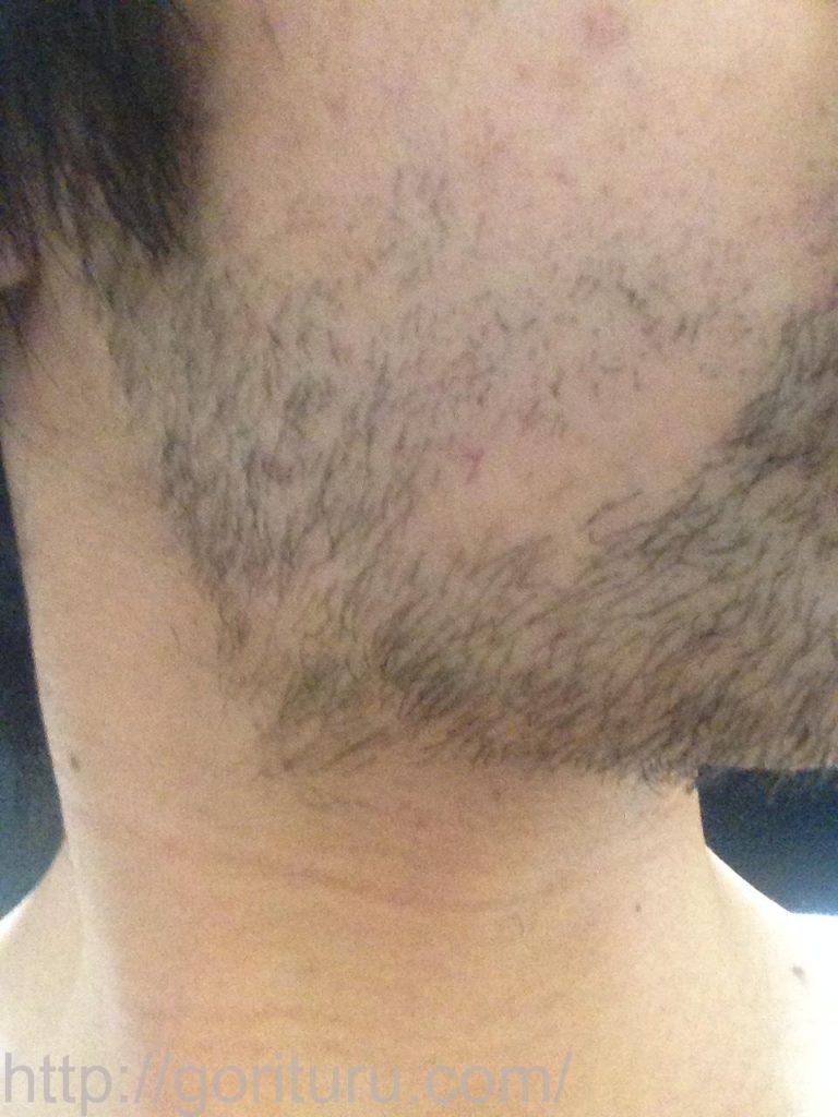 1回目のヒゲ脱毛後10日目(右ほほ・もみあげ)