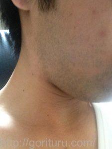 ヒゲ脱毛1回目の効果(脱毛前、1日目、右ほほ・もみあげ)