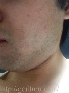 ヒゲ脱毛1回目の効果(脱毛前、1日目、左ほほ・もみあげ)