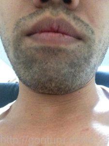 ヒゲ脱毛1回目の効果(脱毛前、3日目、正面)