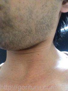 ヒゲ脱毛1回目の効果(脱毛前、3日目、左ほほ・もみあげ)