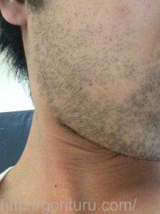 ヒゲ脱毛1回目の効果(脱毛前、3日目、右ほほ・もみあげ)