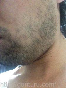 ヒゲ脱毛1回目の効果(脱毛前、7日目、左ほほ・もみあげ)
