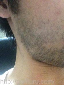 ヒゲ脱毛1回目の効果(脱毛前、7日目、右ほほ・もみあげ)