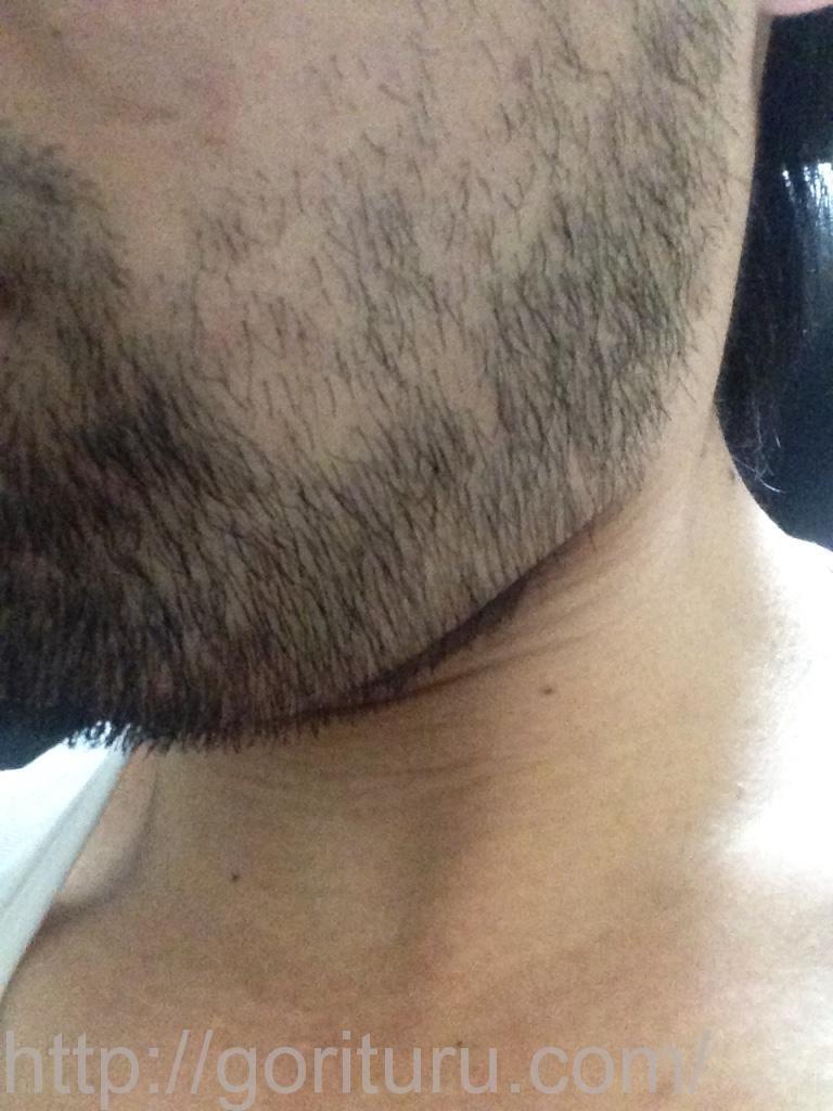 ヒゲ脱毛前-10日目(左ほほ・もみあげ)