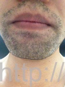 ヒゲ脱毛1回目の効果(脱毛1ヶ月後、3日目、正面)
