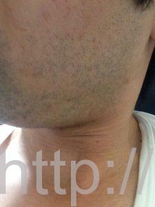 ヒゲ脱毛1回目の効果(脱毛1ヶ月後、1日目、左ほほ・もみあげ)
