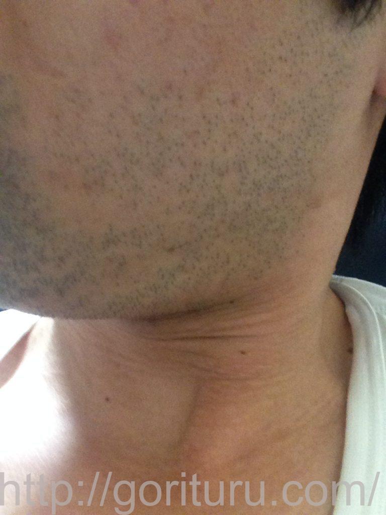 ヒゲ脱毛1回目1ヶ月1日目(左)