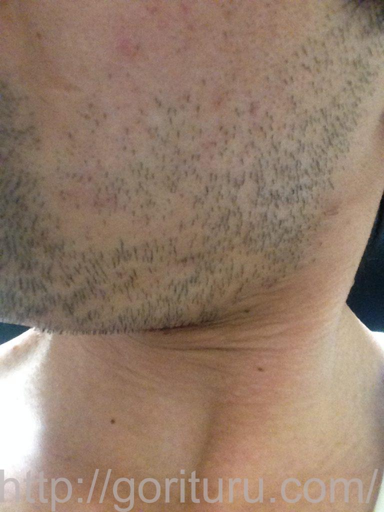 ヒゲ脱毛1回目1ヶ月3日目(左)