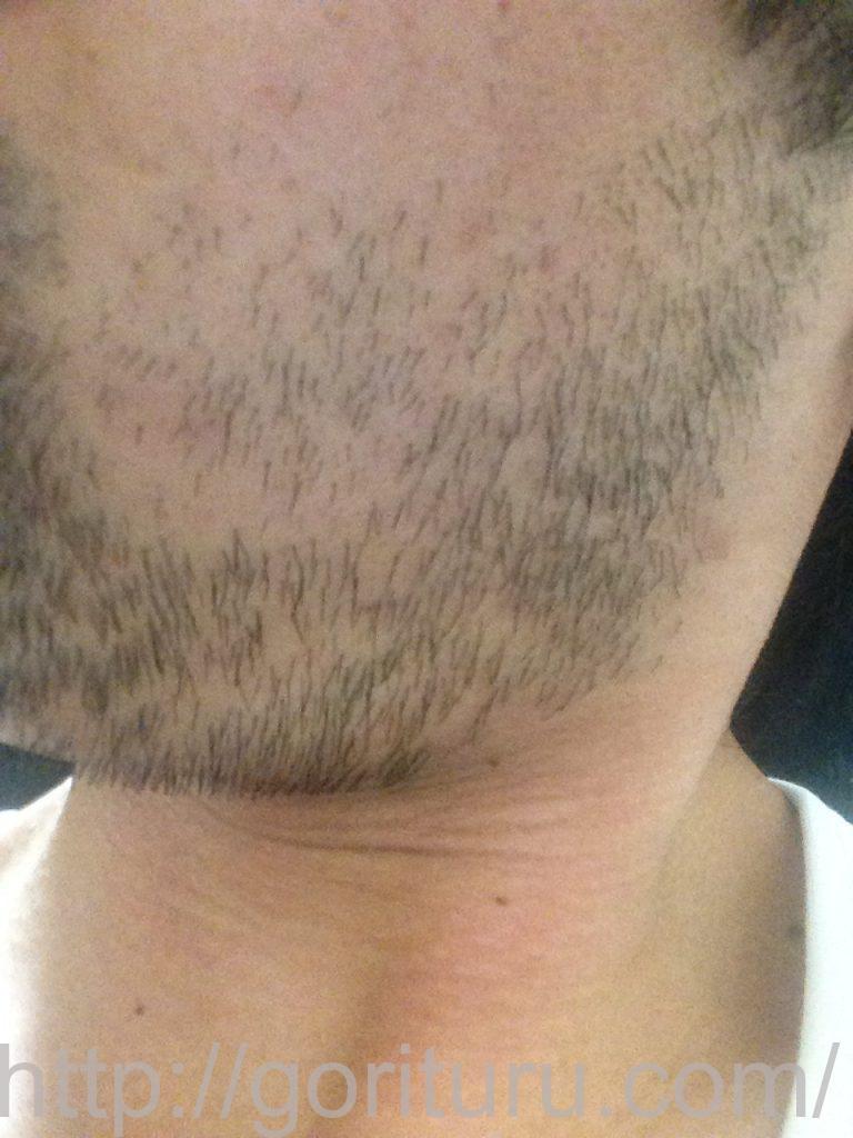 ヒゲ脱毛1回目1ヶ月7日目(左)