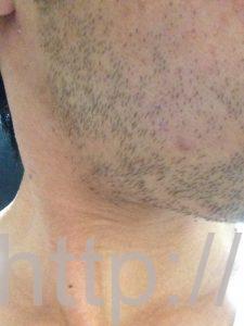 ヒゲ脱毛1回目の効果(脱毛1ヶ月後、3日目、右ほほ・もみあげ)