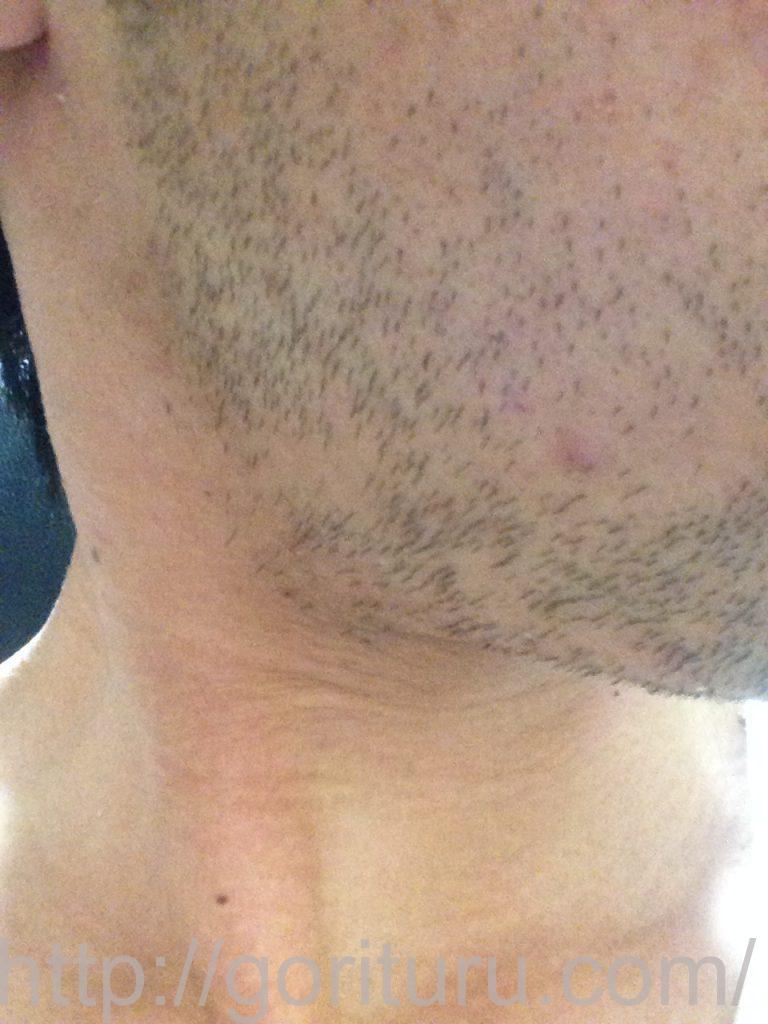 ヒゲ脱毛1回目1ヶ月3日目(右)