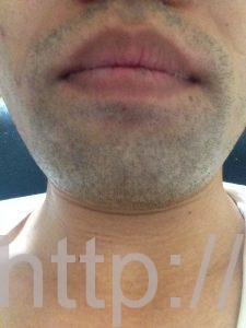 ヒゲ脱毛1回目の効果(脱毛1ヶ月後、1日目、正面)