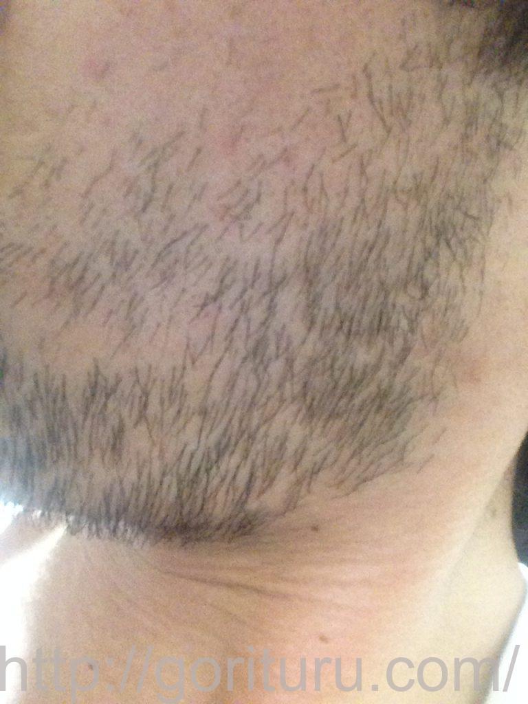 ヒゲ脱毛1回目1ヶ月10日目(左)