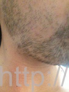 ヒゲ脱毛1回目の効果(脱毛1ヶ月後、7日目、右ほほ・もみあげ)