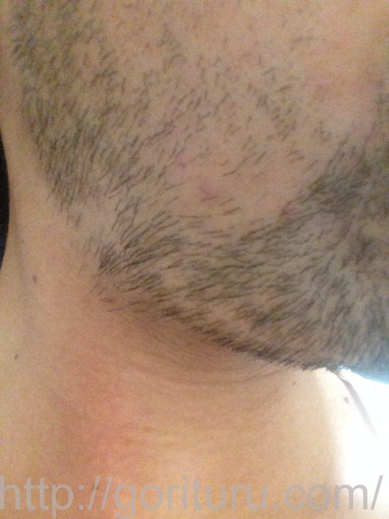 ヒゲ脱毛1回目1ヶ月7日目(右)