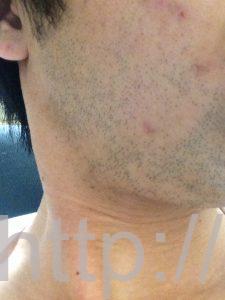 ヒゲ脱毛1回目の効果(脱毛1ヶ月後、1日目、右ほほ・もみあげ)