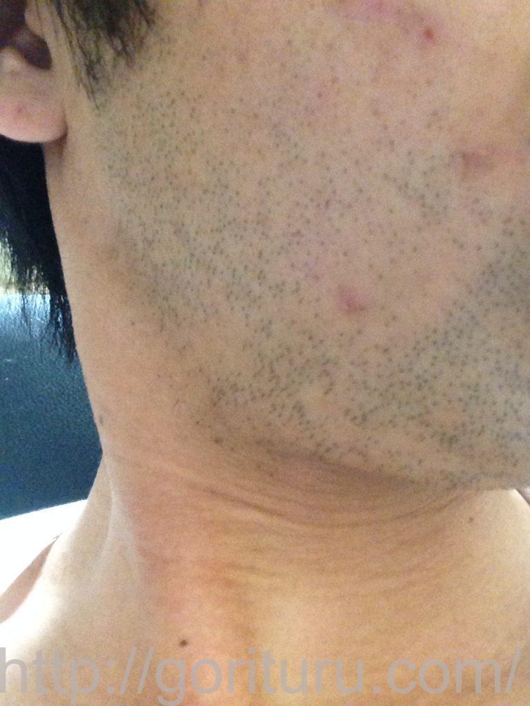 ヒゲ脱毛1回目1ヶ月1日目(右)