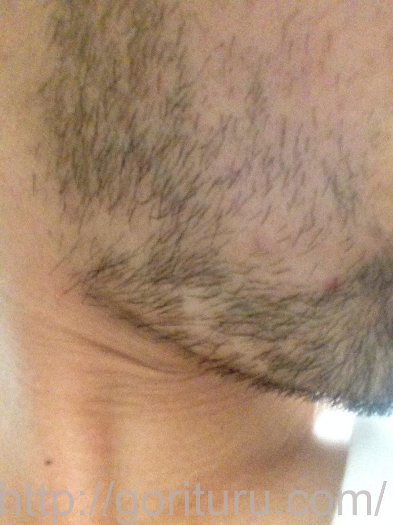 ヒゲ脱毛1回目1ヶ月10日目(右)