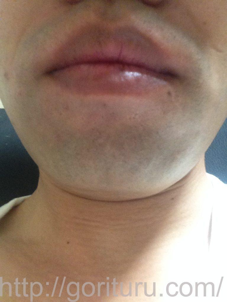 ヒゲ脱毛1ヶ月髭剃り直後(正)