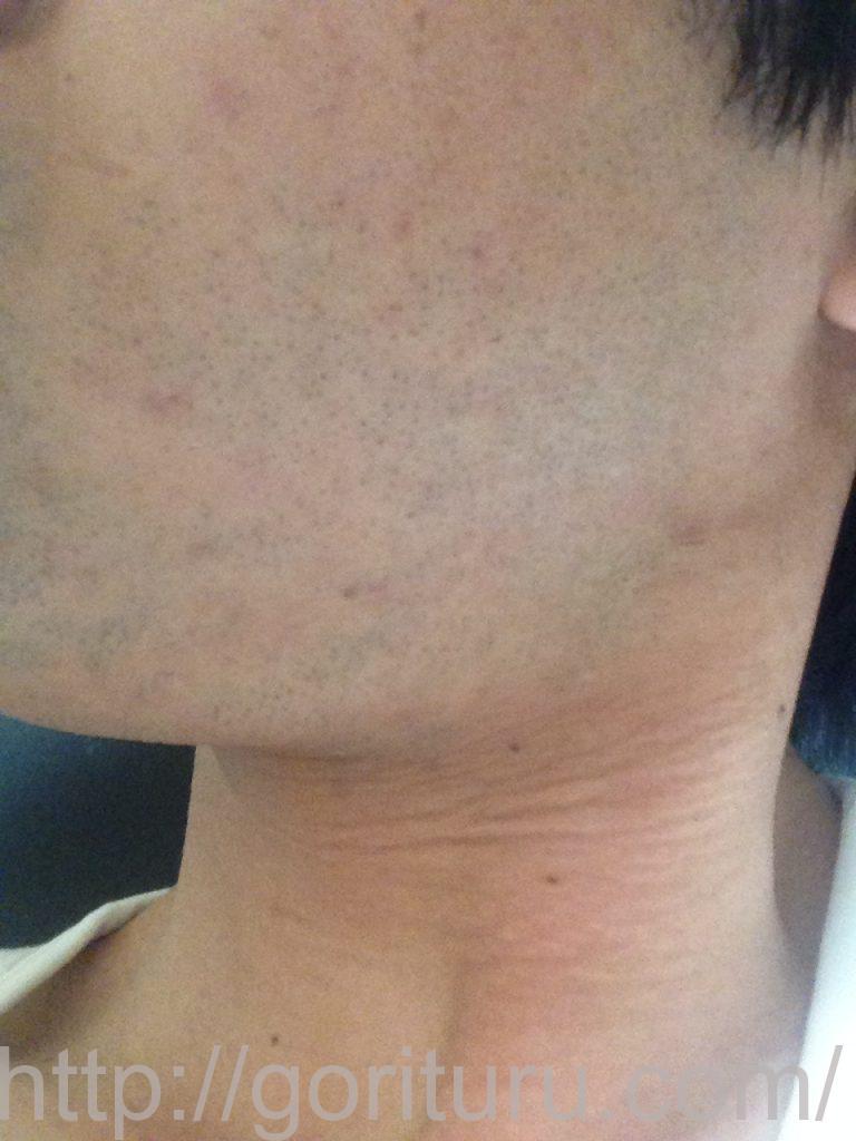 ヒゲ脱毛1ヶ月髭剃り直後(左)