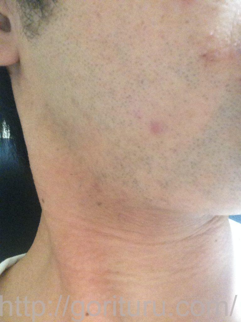 ヒゲ脱毛1ヶ月髭剃り直後(右)