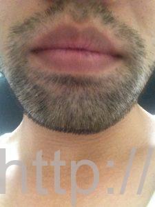 ヒゲ脱毛1回目の効果(脱毛1ヶ月後、7日目、正面)
