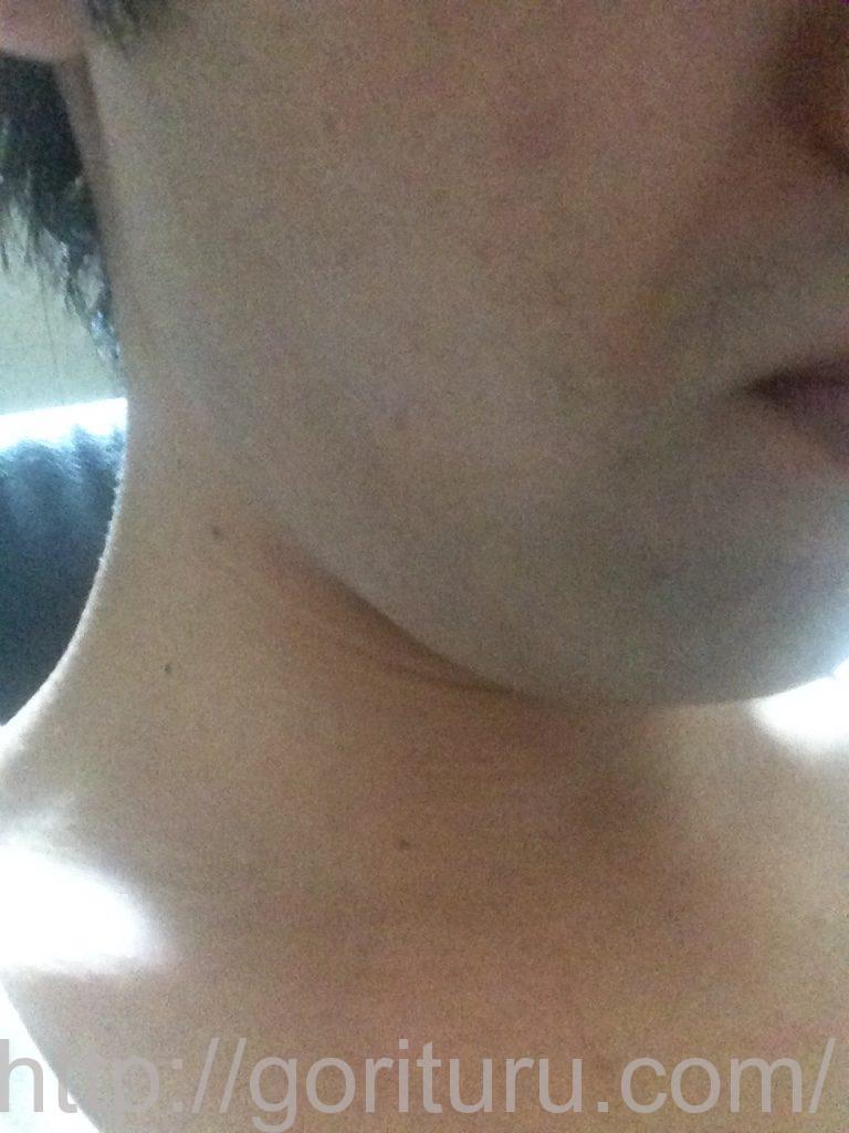 ヒゲ脱毛前髭剃り直後(右)