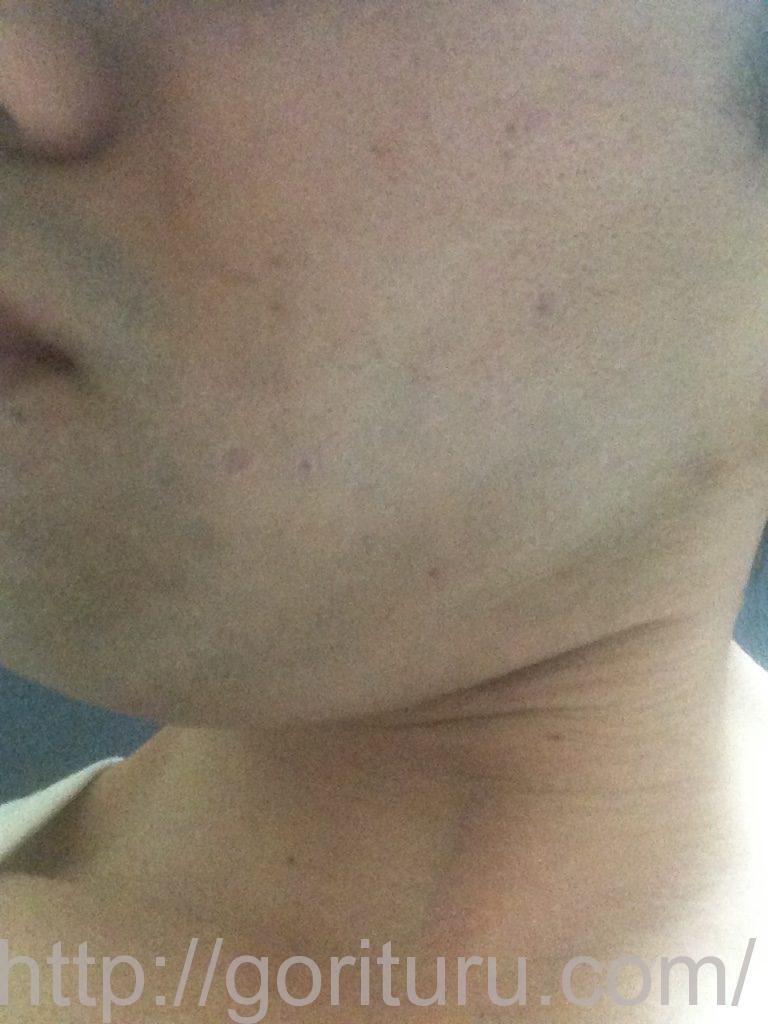 ヒゲ脱毛前髭剃り直後(左)