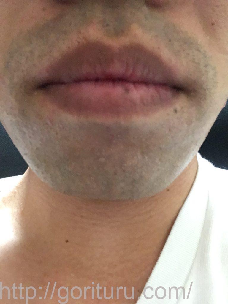 【髭脱毛2回目】レーザー照射後-髭剃り直後-正面