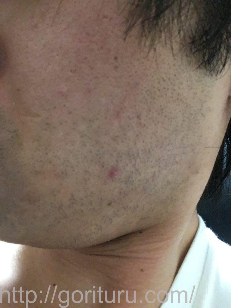【髭脱毛2回目】レーザー照射後-髭剃り直後-左頬・もみあげ