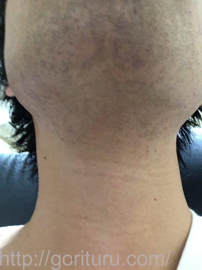 【髭脱毛2回目】レーザー照射後-髭剃り直後-首・顎下