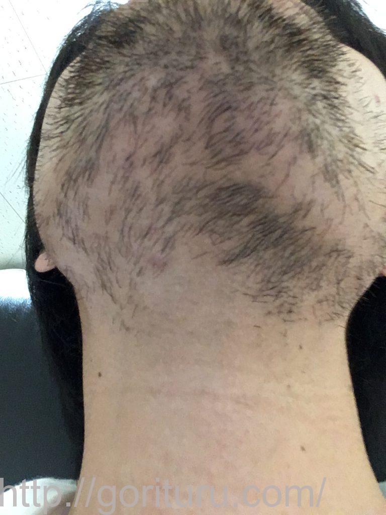 髭脱毛2回目後-アゴ下・首