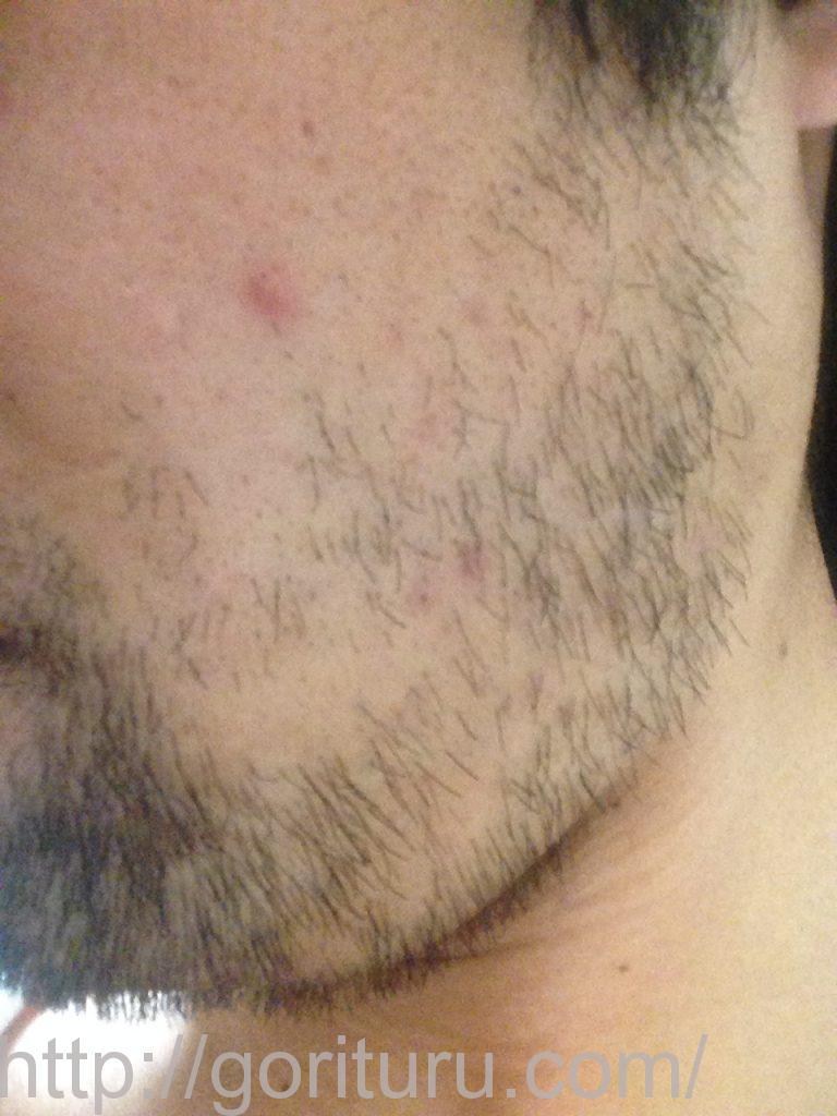 髭脱毛2回目後-左ほほ・もみあげ(iphone5)