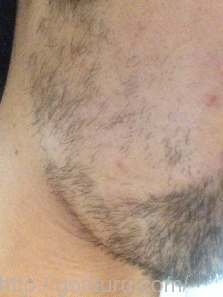 髭脱毛2回目後-右ほほ・もみあげ(iphone5)