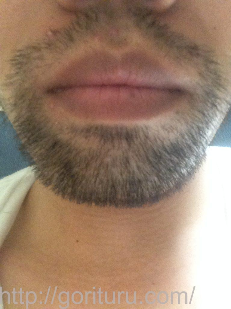 髭脱毛2回目後-正面(iphone5)