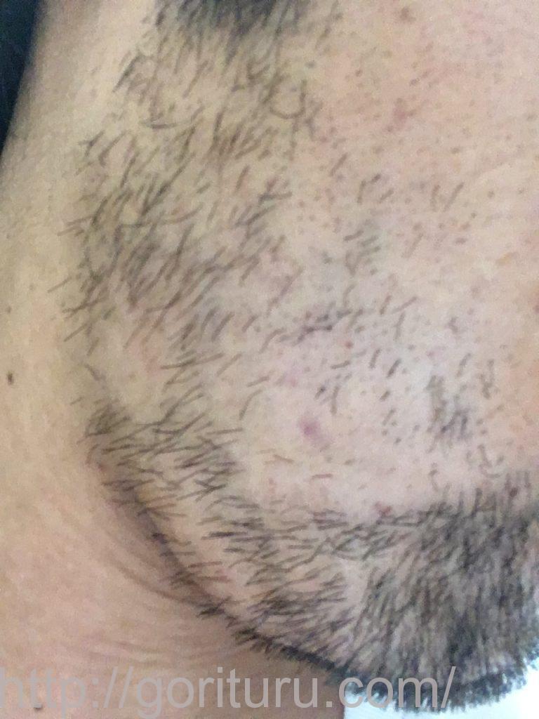 【髭脱毛2回目】レーザー照射後-10日後-右ほほ・もみあげ