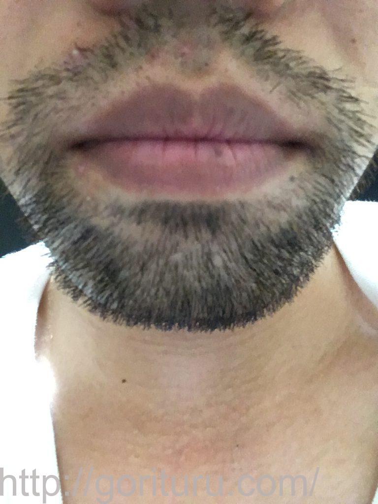 【髭脱毛2回目】レーザー照射後-10日後-正面